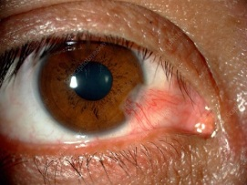 Pterygium or Surfer's Eye